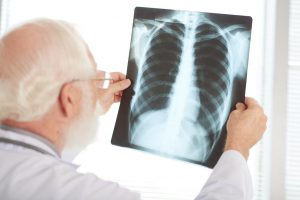Pneumonia: conheça os riscos dessa doença em idosos