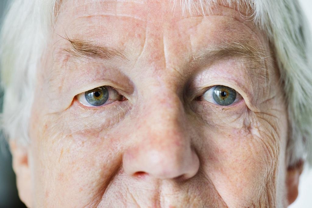Pele Seca: Principais cuidados com após os 60 anos